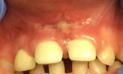 Large cavities on front teeth fixed with white faced crowns